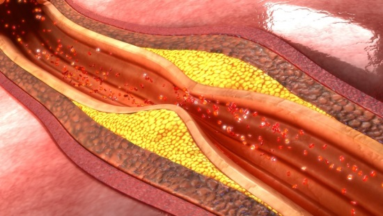 עורק חסום, אפשר לרפא סוכרת 2, לחץ דם גבוה וכולסטרול גבוה באמצעות תוכניות הריפוי של קארונה
