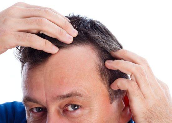 אובדן שיער אצל גברים
