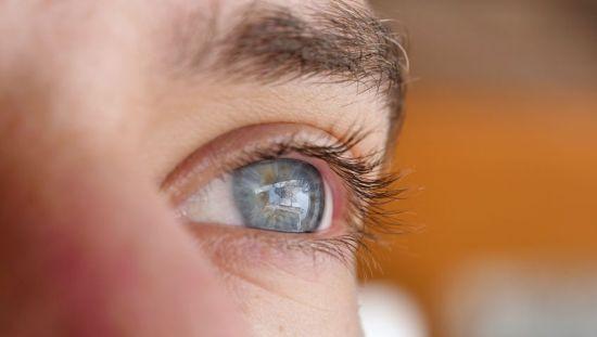 עיניים