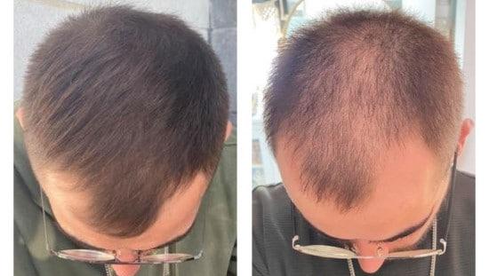 """השינוי של אופק. לפני ואחרי השימוש ב-RICHER. תמונות באדיבות יח""""צ"""