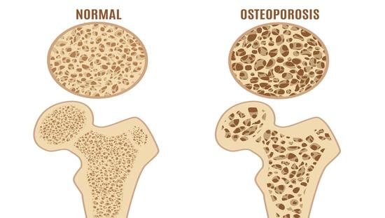אוסטאופורוזיס - המגפה השקטה